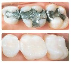 Natural tooth colored white fillings are made from a composite resin that is designed to precisely match the color of your teeth. To find out more ask your #Dentist or #Hygienist.