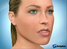 STUDIO DENTISTICO BALESTRO: Accorciamento chirurgico della mandibola