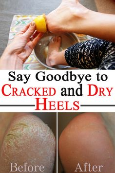 Sandal season approaches, so that cracked and dry heels must disappear. Try these natural remedies and enjoy a hydrated and smooth skin.