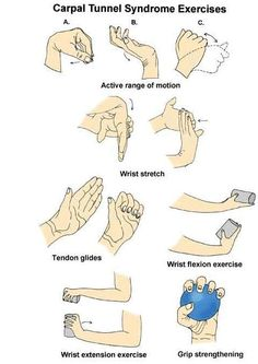 Carpel tunnel exercises Carpal Tunnel Relief, Carpal Tunnel Syndrome, Health Tips, Health And Wellness, Health Fitness, Health Club, Easy Fitness, Wellness Mama, Wellness Quotes