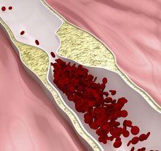 Coronary Artery Blockage Treatments