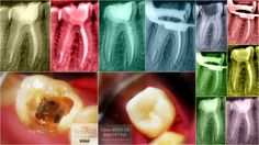 Endodoncia en Cuernavaca #Endodonciacuernavaca #Endodonciamorelos #Endodonciamexico #Endodoncia #Cuernavaca