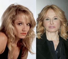 Stars who age badly – slide 8 Ellen Barkin was one of the most beautiful women in Hollywood. Unfortunately, she couldn't seem to let the aging process happen naturally. Botched Plastic Surgery, Bad Plastic Surgeries, Plastic Surgery Before After, Plastic Surgery Gone Wrong, Celebrity Plastic Surgery, Ellen Barkin, Celebrities Then And Now, Dental Surgery, Celebrity Look