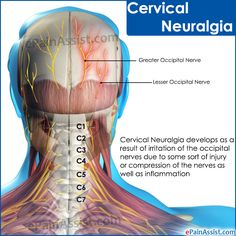 Cervical Neuralgia Cervical Neuralgia develops as a result of irritation of the occipital nerves due to some sort of injury or compression of the nerves as well as inflammation. Conservative treatment works best for Cervical Neuralgia. Cervical Pain, Neuralgia Symptoms, Chronic Migraines, Chronic Pain, Radiculopathy, Scoliosis Exercises, Neck Exercises, Neck Injury, Natural Remedies