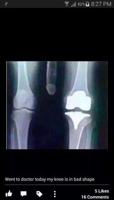 17 Funny Pics & Memes to Medicate Your Humor Bone - Team Jimmy Joe