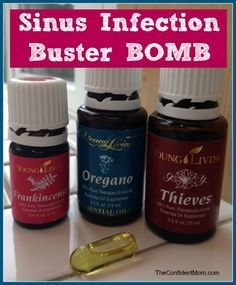Sinus Infection Buster Bomb - Frankincense, Oregano and Thieves essential oils from Young Living- if you use doTerra, you can sub OnGuard for Thieves Oil Essential Oils Sinus, Oils For Sinus, Essential Oil Uses, Natural Essential Oils, Thieves Essential Oil, Essential Oils Ear Infection, Natural Oils, Young Living Essential Oils Recipes Cold, Essential Oils
