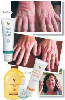 we have recommendations for you that will help clear your skin. To purchase yours now, see link below http://gileshampsonglobal.foreverlivingsite.com