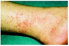 Rash caused by Rocky Mountain spotted fever. (Photograph by Ken E. Rocky Mountain Spotted Fever, Gaston, Health And Nutrition, Definitions, Photograph, House, Haus, Fotografia