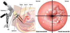 Kolposkopi, rahim ağzı başta olmak üzere tüm genital bölgenin özel bir büyüteç yardımıyla incelenmesidir. Kolposkopi Ankara doktorlarımız Doç. Dr. Nermin Köşüş ve Doç. Dr. Aydın Köşüş tarafından muayenehanelerinde titizlikle uygulanmaktadır. Kolposkopi fiyatları yapılacak işlemin genişliğine göre değişir. Kolposkopi fiyatları 2020 detayları için bizden mutlaka bilgi alınız. Ulsan, Canada, Olsen