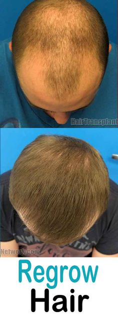 Powerful Home Remedy For Hair Growth That Work Wonders