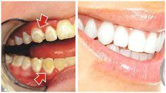 La limpieza de la boca es primordial para evitar este tipo de afecciones, todos conocemos que diariamente debemos limpiar nuestros dientes al menos tres veces y usar enjuague bucal.