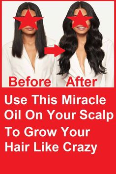 Items similar to Use This Miracle Oil On Your Scalp To Grow Your Hair Like Crazy on Etsy Grow Thicker Hair, Grow Hair, Hair Growing, Natural Eyebrows, Natural Makeup, Perfect Image, Perfect Photo, Perfect Abs, Eye Photography