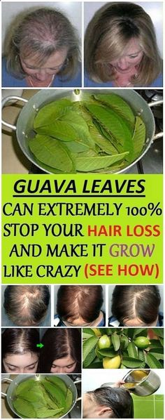 Guava leaves can extremely stop your hair loss and make it grow like crazy. Guava leaves are worthy of so much attention since they offer an abundance of health benefits. Anti Hair Loss, Stop Hair Loss, Health Tips For Women, Health And Beauty, Health Advice, Healthy Tips, How To Stay Healthy, Healthy Drinks, Healthy Recipes