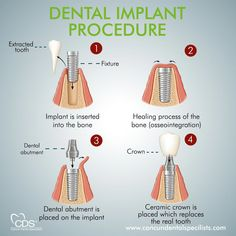 What You Need To Do For Healthier Teeth – Healthy Senior Lifestyle Dental World, Dental Life, Dental Health, Dental Implant Procedure, Dental Implants, Baby Bottle Tooth Decay, Dental Assistant Study, Dental Clinic Logo, Dental Posters