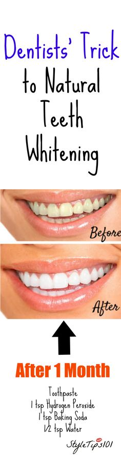 Today we'll show you how to whiten teeth naturally at home without having to pay a visit to your dentist! This all natural teeth whitening method has been used for hundreds of years and that's Natural Skin Whitening, Charcoal Teeth Whitening, Teeth Whitening Methods, Best Teeth Whitening, Teeth Health, Oral Health, Health Tips, Health Lessons, Beauty Tutorials