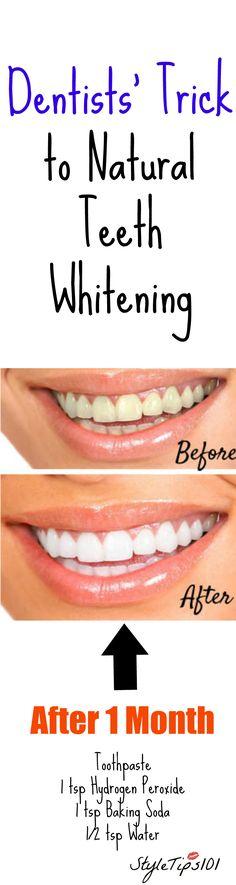 how to whiten teeth Naturlig Tandblekning, Tandhygien, Städtips, Tänder, Målningar, Ansikte