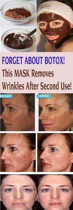FORGET ABOUT BOTOX! This MASK Removes Wrinkles After Second Use! As a result of aging, wrinkles appear. They can also appear because of an unhealthy skin, and because of them, we look older than we are. Natural Skin, Natural Health, Face Care, Skin Care, Teeth Care, Prevent Wrinkles, Wrinkle Remover, Perfect Skin, Homemade Beauty