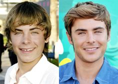 Good thing Zac Efron visited the orthodontist before High School. Otherwise they never would have let him be in the musical!