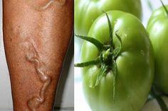 Você sabia que com tomate verde é umótimo umtratamento para varizese tem surpreendido pelos resultados imediatos? Varizes são veias dilatadas que geralmente ocorrem na parte mais superficial da …