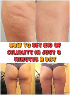 How to get rid of cellulite in just 8 minutes a day