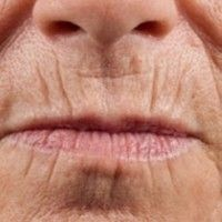 The mask straightens wrinkles like surgery! The famous cosmetologist explained the formula! Lip Wrinkles, Mask Makeup, Corte Y Color, Les Rides, How To Line Lips, Skin Mask, Homemade Skin Care, Natural Health, Hair And Nails