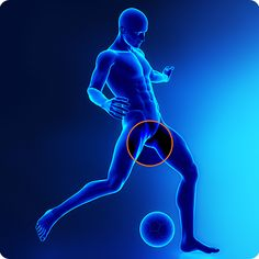 What is a Sports Hernia & How to Manage One