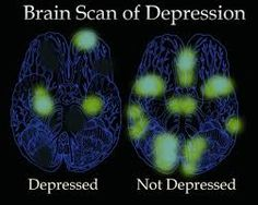 Image result for the brain with depression