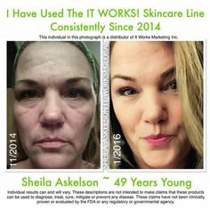 What will (or how does) your skin look like at 49 years old? Try our products and take your own before and afters! Kdgracy.ItWorks.com #SkinPeelBeforeandAfter #StretchMarksOnThighs Anti Aging Skin Care, Natural Skin Care, Before And After Weightloss Pics, Stretch Marks On Thighs, It Works Marketing, Smaller Pores, It Works Products, Thing 1, Chemical Peel