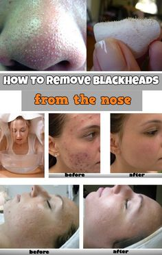 How to remove blackheads from the nose