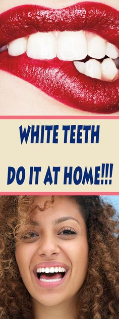 Tooth whitening has become a trend because bright and healthy teeth have become aesthetically imperative of the modern age, especially in Hollywood stars.