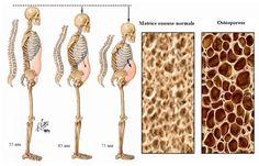 Les sodas et l'ostéoporose