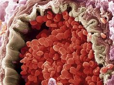 Scanning electron micrograph of a blood vessel and RBC