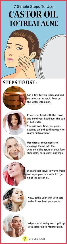 In case you are fed up of those acne scars on your face and couldn't do much about it, castor oil is something you should start using right away!   Want to know how this wonder oil helps in treating acne? Then go ahead and read this post! #naturalskincare #skincareproducts #Australianskincare #AqiskinCare #australianmade