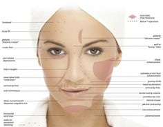 Treatment areas for botulinum toxin (wrinkle relaxing injections) and dermal fillers in the face.