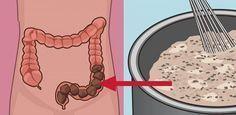 Nettoyez votre colon des déchets toxiques grâce à ce remède maison !