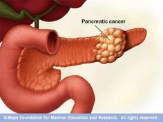 Study: Only 1 in 5 US pancreatic cancer patients get this key blood test at diagnosis