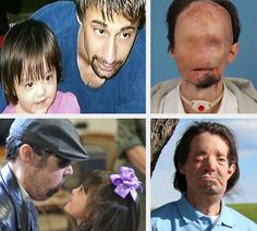 Dallas Wiens before his injury; after the injury; soon after face transplant surgery; one year after the face transplant.
