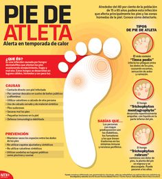 This is about athletic foot, and it says that one of it's causes is direct contact with infection.