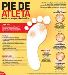 ¿Sabes qué es y cuáles son las causas del pie de atleta? #Infographic
