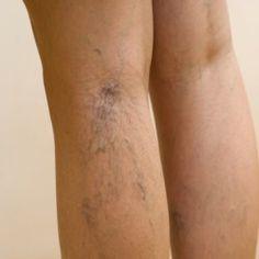 exerciții yoga varicoză varicoză sub genunchi cum să aibă durere