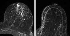 Study finds a screening byproduct, once thought to be clinically insignificant, is useful in predicting the likelihood of breast cancer in high-risk women