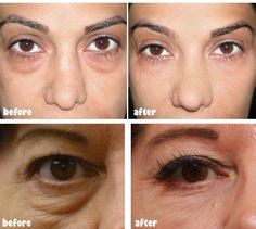17 Best Ultherapy Images On Pinterest Skin Treatments Skincare