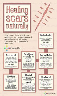 Healing scars the natural way