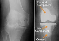 Left) An x-ray of a severely arthritic knee. (Right) The x-ray appearance of a total knee replacement. Note that the plastic spacer between the bones does not show up in an x-ray.