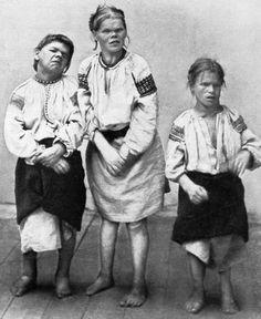 Figure Ukrainian cretin farm women (from A.