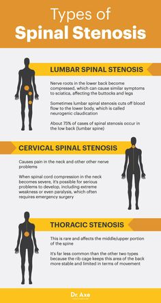 Stenosis: The Real Cause of Your Back Pain? Types of spinal stenosis - Dr. AxeTypes of spinal stenosis - Dr. Lumbar Spinal Stenosis, Stenosis Of The Spine, Spinal Stenosis Treatment, Cervical Spinal Stenosis Symptoms, Cervical Spondylosis, Cervical Cancer Ribbon, Scoliosis Exercises, Lumbar Exercises, Stretches