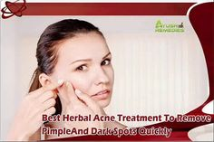 Dear friend, in this video we are going to discuss about the best herbal acne treatment. Golden Glow capsule is the best herbal acne treatment that removes pimple and dark spots quickly and improves skin health in natural manner without negative impact.  You can find more about the best herbal acne treatment at http://www.ayushremedies.com/acne-skin-care-treatment.htm