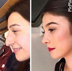 Possibly the best nose job I've ever seen Posiblemente el mejor trabajo de nariz que he visto Nose Plastic Surgery, Nose Surgery, Celebrity Plastic Surgery, Pretty Nose, Nose Reshaping, Rhinoplasty Before And After, Rhinoplasty Surgery, Small Nose, Nose Shapes