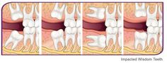 Impacted Wisdom Teeth Always interesting what you can find when you type in cosmetic surgery and other related terms
