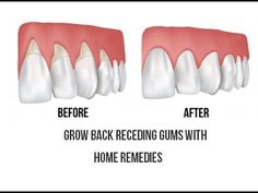 How You Can Grow Back Your Receding Gums In No Time With The Help Of These Natural Remedies - My Healthy Life Vision